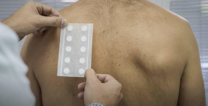 prueba alergia parche