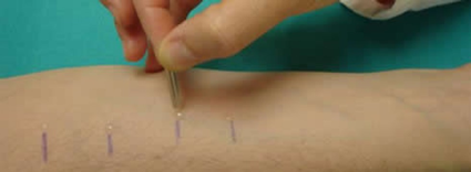 pruebas alergia
